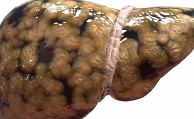 Karaciğere obezite darbesi