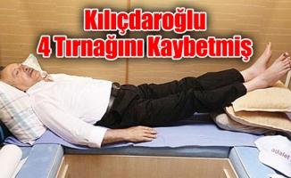 Kılıçdaroğlu 4 Tırnağını Kaybetmiş